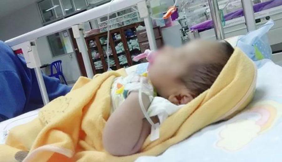 Bé sơ sinh 20 ngày tuổi gần như bị thối ruột vì bà cho uống nước đun sôi.