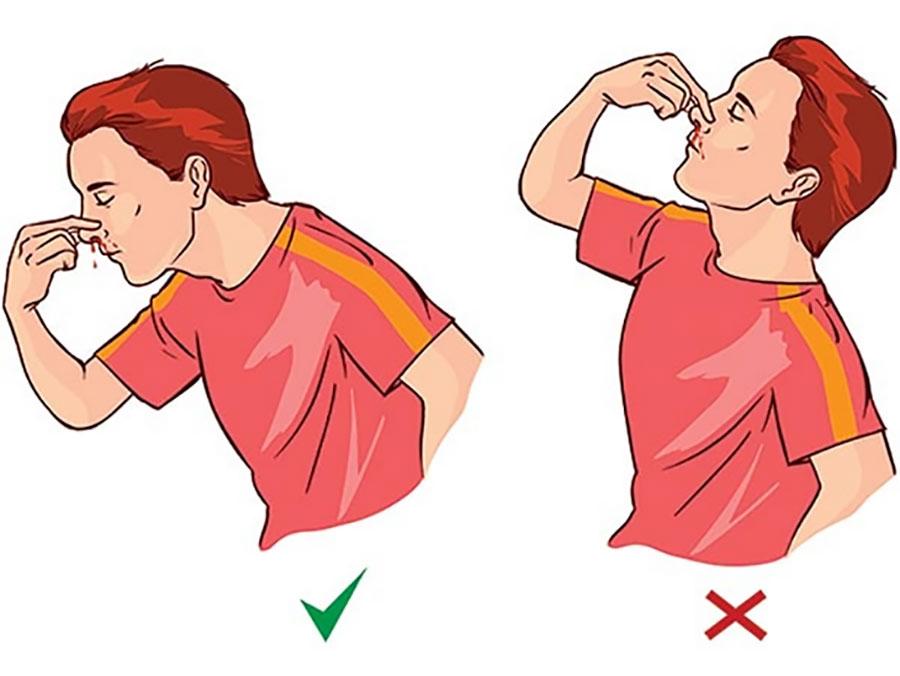 Khi bị chảy máu cam, nên ngồi xuống, đầu hơi cúi về trước, lấy tay ấn chặt cánh mũi bị chảy máu. Ảnh: Internet.