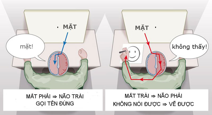 Thử nghiệm với người bị chia cắt não