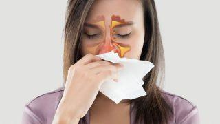 Viêm Xoang, Triệu chứng, Nguyên nhân, Cách điều trị!
