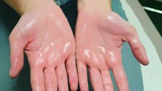 Thuốc chữa trị bệnh ra mồ hôi tay chân, nách tận gốc 100% khỏi?