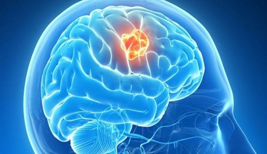 U não, Nguyên nhân, Triệu chứng, Phương hướng điều trị!