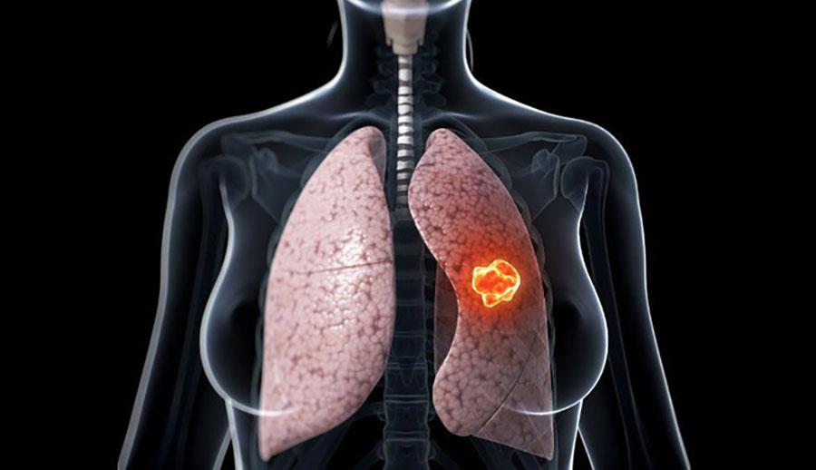 Ung thư phổi ngày càng gia tăng - Ảnh minh họa: Internet