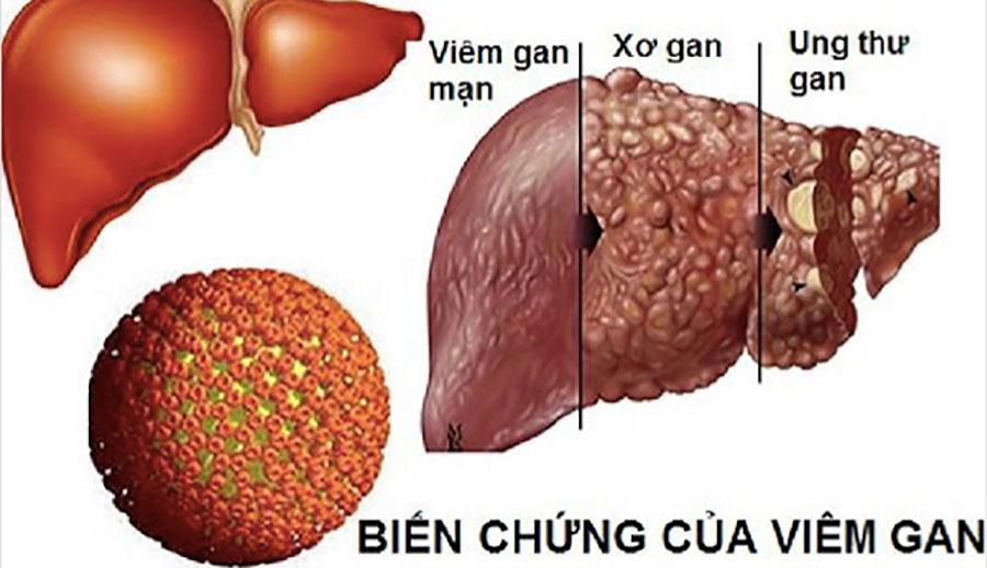 Viêm gan B lây lan nhanh hơn HIV gấp 100 lần