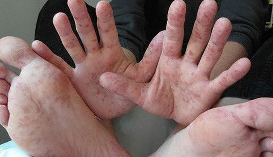 Thuốc điều trị bệnh, Nước ăn chân, ghẻ, viêm nang lông!