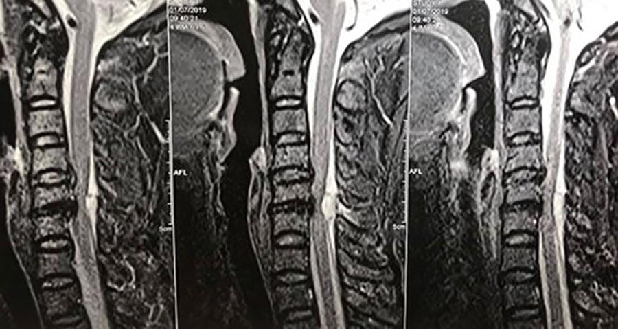 Hình ảnh tổn thương của bệnh nhân qua phim chụp.