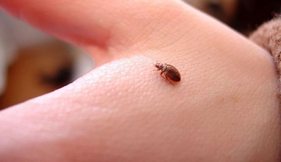 Cách điều trị Sẩn ngứa do côn trùng cắn!