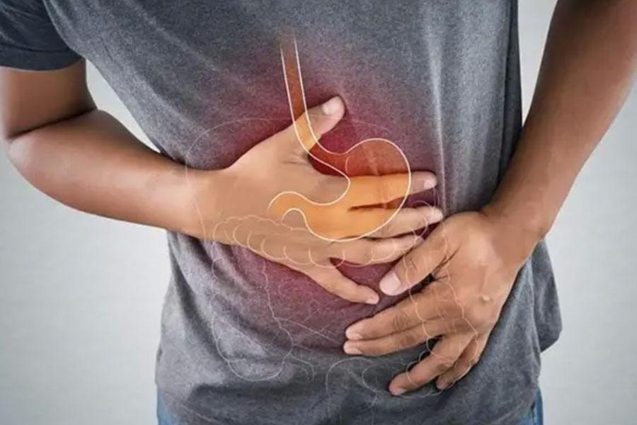 Bệnh Loét dạ dày - Hành tá tràng, nguyên nhân, triệu chứng, điều trị!