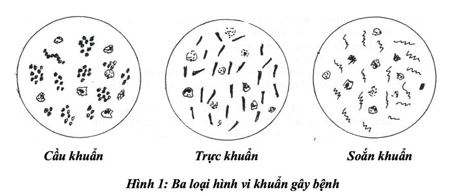 Hình 1: Ba loại hình vi khuẩn gây bệnh