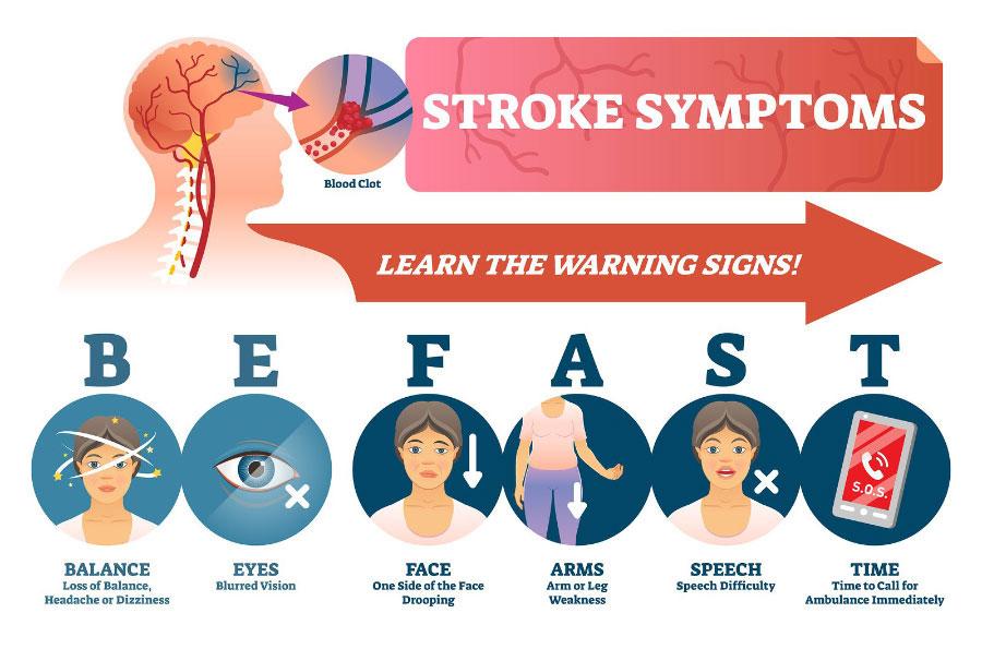 Bài kiểm tra đứng 1 chân có thực sự giúp chúng ta biết sớm nguy cơ bị đột quỵ?