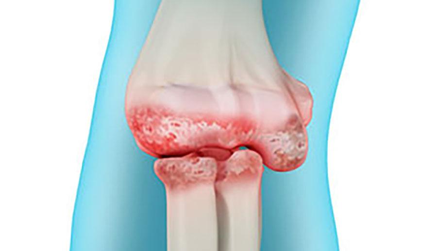 Triệu chứng của viêm xương khớp