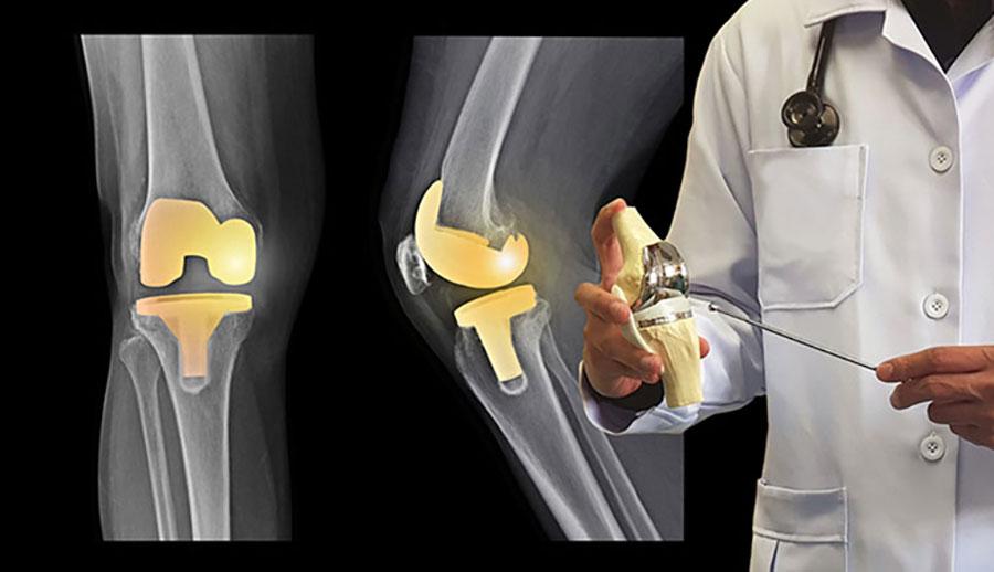 Cách điều trị bệnh viêm xương khớp